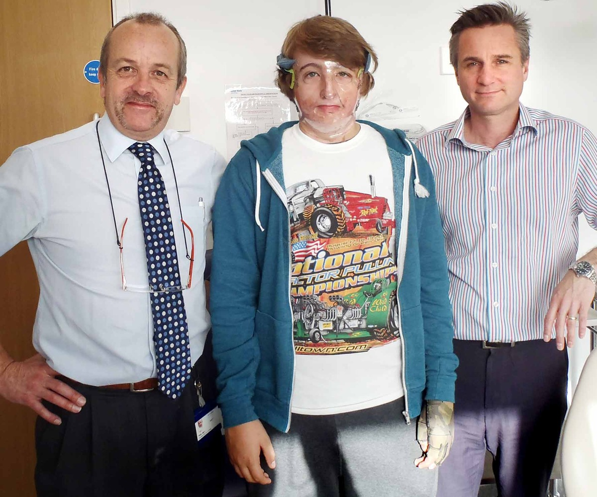 Burns victim Frank Richardson, centre, from Pershore with, left, Peter Jeynes, a consultant maxillofacial prosthetist from Ombersley, and, right, Stefan Edmondson, a principal maxillofacial prosthetist who is from Peopleton.